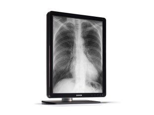 Barco's Coronis 3MP LED diagnostic display for radiologists
